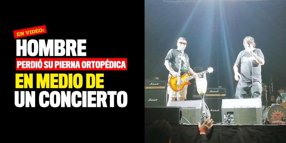 VIDEO: Hombre perdió su pierna ortopédica en medio de un concierto