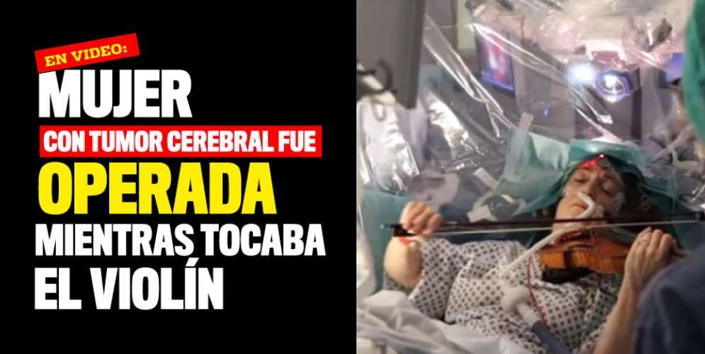 VIDEO: Mujer con tumor cerebral fue operada mientras tocaba el violín