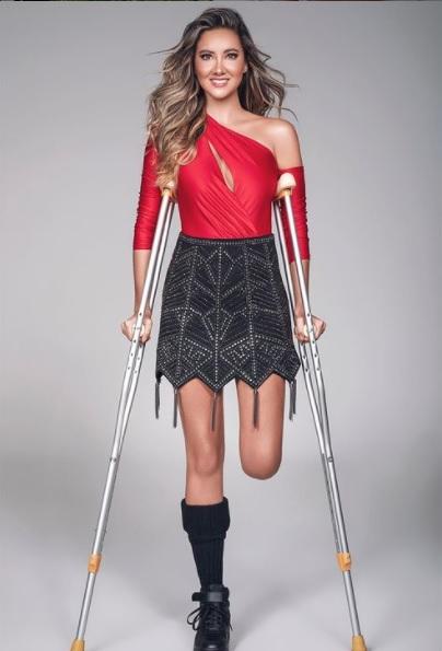 ¡Daniella Álvarez está estrenando pierna! Así luce con su prótesis